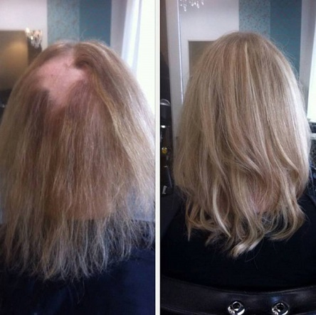 Hair talk extensions pris